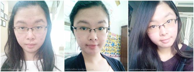 [Review] Natasha Skin Care Girl's Secret Acne Treatment Set | My Dandelion Dreams